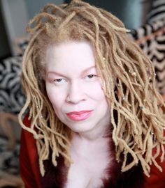A fashion photographer can see the beauty of a girl with albinism. Albino Model, Albinism, Coloured Girls, Dreadlocks, Fair Skin, Fall Hair, Beautiful People, Gorgeous Women, Natural Hair Styles
