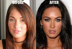 Megan Fox Plastic Surgery rumors include a nose job, cheek fillers, lip fillers, boob job, and Botox. We will be walking you through some plastic surgery before and after photos so that you can decide for yourself. Megan Fox Plastic Surgery, Plastic Surgery Photos, Megan Fox Lips, Botox Before And After, Megan Fox Before After, Kardashian, Cheek Fillers, Perfect Nose, Aesthetic Dermatology