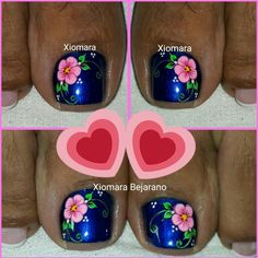 Cute Pedicure Designs, Toe Nail Designs, Simple Nail Designs, Nail Polish Designs, Pedicure Nail Art, Toe Nail Art, Diy Nails, Pretty Toe Nails, Fancy Nails