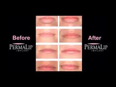 PermaLip Implants from Bella Vou Lip Implants, Lip Injections, Lip Fillers, Your Lips, Face Makeup, Hair Beauty, Make Up, Nails, Finger Nails