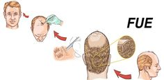The old school of hair transplant was depending on the single strip harvesting to obtain the required tissues for follicular unit transplantation. A new technique emerged in the last few years to proof that it is a new era of hair transplant. Follicular unit extraction (FUE) is that new technique of hair transplant.