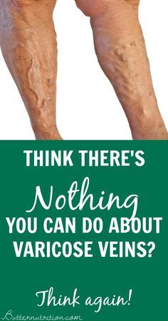 Think there's NOTHING you can do about VARICOSE VEINS? Think again! | Butternutrition.com