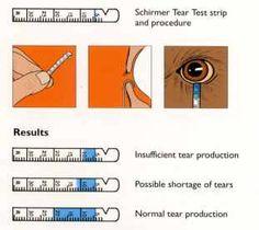 Schirmer Tear Test