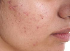 Acne Removal Question And Answer, Almost everyone has had at least mild acne at some point. Acne is the most common of all skin disorders Home Remedies For Pimples, Natural Acne Remedies, Acne Skin, Acne Scars, Acne Face, Oily Skin, Hair Follicles, News Website, Skin Treatments