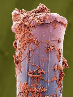 WARNING! These microscopic images of dental #plaque are pretty gross. We hope this is good motivation to brush and #floss daily!