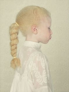 Albinos Project by Gustavo Lacerda