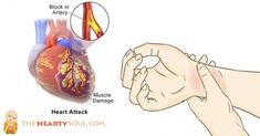 how to avoid a heart attack