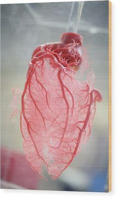 Resin cast of human heart blood vessels was achieved by shooting liquid plastic into a real heart. The plastic resin fills the blood vessels and once the resin sets the tissue is dissolved away leaving a perfect replica of the blood supply of the heart. Anatomy Art, Human Anatomy, Gunther Von Hagens, Image Nature, Anatomical Heart, Human Heart, Resin Casting, Anatomy And Physiology, Heart Art