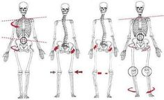 Four types of posture deviations: torso and pelvic elevation and rotation; pelvic rotation and elevation with valgus knee stress; pelvic elevation with varus knee stress; shoulder elevation and internal/external femur rotation with tibial torsion. Colección del Dr. Pedro Antonio Sánchez Mesa, MD; Médico Especialista en Ortopedia y Traumatología, Cirugía Reconstructiva de Cadera y Rodilla, Ortopedia y Traumatología Infantil y del Adolescente. PBX: 6923370 Ext. 10-02 Móvil: +57-3142448344…
