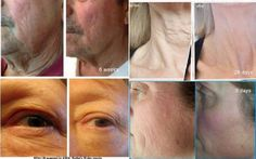 Two questions for you: 1) if you could get results like this with 1 product containing 4 non-toxic ingredients that no other product has, for $35, would you want the product? 2) does this look like a good business opportunity to you? Contact me about RENU 28, the new ASEA in gel form: 434 465-1630