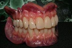 Caracterización de Prótesis totales Dental Logo, Dental Art, Dental Hygiene, Happy Dental, Ceramic Braces, Anatomy Reference, Art Reference, Dental Anatomy, Dental Technician