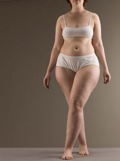 Weight Loss Plan for Endomorph Body Type