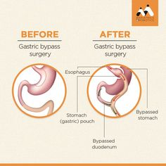 Gastric Bypass is a metabolic surgery and it helps in treating obesity along with co-morbidities like type 2 diabetes, sleep apnea, asthma, knee pain, hypertension, etc. Call and consult a Bariatric Surgeon at - 99266 68776#GastricBypass