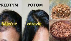 Babičkin tajný recept s ľanovými semienkami, ktorý kompletne zmenil rast mojich vlasov. - Báječné zdravie