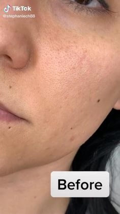 acne on chin remedies / acne on chin - acne on chin meaning - acne on chin remedies - acne on chin face mapping - acne on chin and jawline - acne on chin and neck - acne on chin how to get rid of Beauty Tips For Glowing Skin, Clear Skin Tips, Clear Skin Routine, Beauty Skin, Gesicht Mapping, Haut Routine, The Face, Face Skin Care, Skin Bumps On Face
