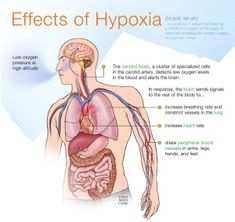 Hypoxia is a condition in which the body or a region of the body is deprived of adequate oxygen supply at the tissue level. Hypoxia may be classified as either generalized, affecting the whole body, or local, affecting a region of the body. Nursing Mnemonics, Pathophysiology Nursing, Family Nurse Practitioner, Fundamentals Of Nursing, Nursing School Notes, Nursing Tips, Icu Nursing, Respiratory Therapy, Medical Anatomy