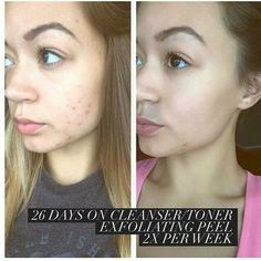 Cleanser, Toner, and Exfoliating Peel!! Our products for your face are awesome! Clean, clear, and smooth! www.tamaralc.myitworks.com