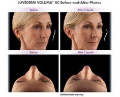 JUVÉDERM VOLUMA™ is here! » Evansville IN | Plastic Cosmetic Reconstructive Surgeon