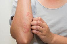 8 głównych przyczyn powstawania egzemy. Nie pozwól, aby tak wyglądała Twoja skóra!