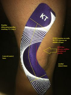 KT Tape for Patella Sublaxation