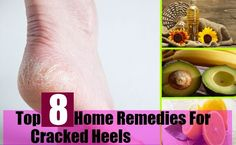 Top 8 Home Remedies For Cracked Heels