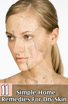 Home Remedies For Dry Skin: Cucumber is extremely beneficial for treating dry skin. Cucumber naturally moisturizes dry skin and also lightens skin tone.