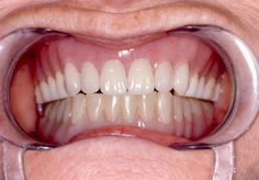 Dentures, also known as false teeth, are prosthetic devices constructed to replace missing teeth, and which are supported by surrounding soft and hard tissues ...