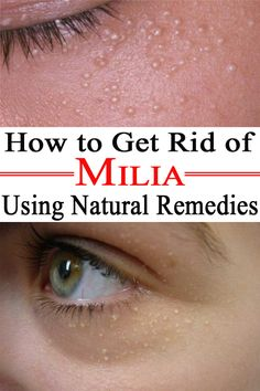 How to get rid of milia using natural remedies - the beauty depot. Health And Beauty Tips, Health Tips, Senior Health Care, Body Hacks, Natural Health Remedies, Young Living Essential Oils, How To Get Rid, Beauty, Relaxer