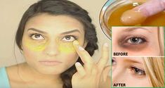 Rub this mix around your eyes, Dark circles and puffiness will disappear in just 10 minutes