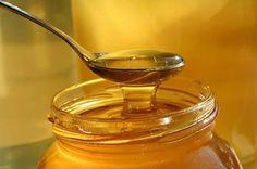 Conoce los mejores Remedios caseros para quemaduras, utilizando cosas de casa como la miel, el vinagre, el bicarbonato o simplemente leche o agua.