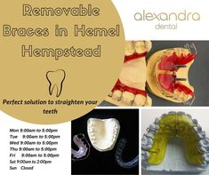 Get all types of braces at Alexandra Dental, Hertfordshire. Our friendly and experienced orthodontist offers removable braces in Hemel Hempstead, the perfect solution to straighten your teeth with the latest technology. Lingual Braces, Types Of Braces, Hemel Hempstead, Teeth Braces, Dental, Latest Technology, How To Remove, Suspenders