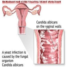 """Remedies for CURE Vaginal Yeast Infection __________________ Tip 1) Yeast organisms like warm, moist conditions, with little or no oxygen. In order to deny them the perfect growing medium, dry your vaginal area thoroughly after bathing or showering. Opt for """"breathable"""" cotton underwear and loose pants, and, if you must wear nylons, choose those that have a built-in cotton-lined panty. Also, avoid lounging around in a wet swimsuit,..............."""