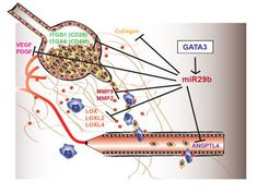 In Breast Cancer Metastasis, Researchers Identify Possible Drug Target