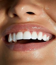 oil pullingIt is the rolling of coconut oil in your mouth.Put two tablespoons of coconut oil in your mouth and roll it from side to side. Dental Photography, Product Photography, Beautiful Teeth, Beautiful Women, Perfect Teeth, Le Tube, Teeth Braces, White Smile, Glowy Skin