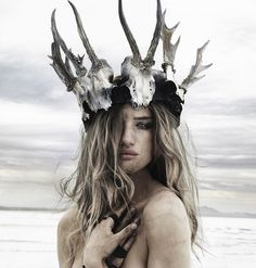Bone crown.