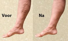 Home remedies to treat varicose veins. How to treat varicose veins? Tips to prevent varicose veins. How to get rid of varicose veins? Varicose Vein Remedy, Varicose Veins, Home Remedies, Natural Remedies, Stress Relief Tips, Body Hacks, Body Treatments, Thats The Way, Health Magazine