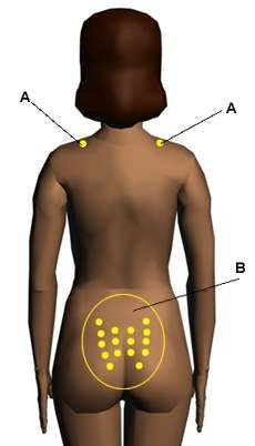 Acupressure Points for Relieving Labor Pain