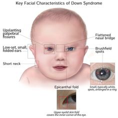 Pathology Glossary: Down Syndrome Down Syndrome Characteristics, World Downs Syndrome Day, Down Syndrome Features, Human Body Diagram, Genetic Counseling, Down Syndrome Baby, Newborn Nursing, Science Room, Medical Mnemonics