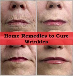 Home Remedies to Cure Wrinkles