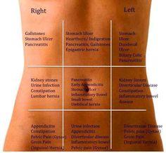 Pain zones by quadrants