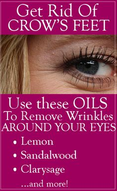 There are many remedies that can help you get rid of these wrinkles and fine lines but using essential oils to treat crows feet is undoubtedly the best method to treat the problem naturally. Essential Oils For Pain, Essential Oils Guide, Essential Oil Uses, Young Living Essential Oils, Best Anti Aging, Anti Aging Cream, Coconut Oil Beauty, Chamomile Essential Oil, Crows Feet