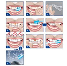 Professional Grade Teeth Whitening Kit