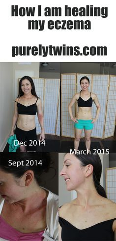 How I am healing my eczema. Sharing before an after pics. | Purelytwins.com  #eczema #healing #guthealth #skincare #beforeandafterpics