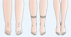 Water weight, also known as water retention or fluid retention, is an irregular deposition of fluid in the body circulatory system. Reduce Weight, Weight Gain, Weight Loss, Foot Remedies, Natural Remedies, Health Remedies, Water Retention Remedies, Water Retention Causes, Physical Inactivity