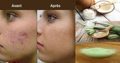 Appliquez ce masque pour le visage à base d'aloe vera et d'huile de noix de coco et vos cicatrices, boutons d'acné et taches vont disparaître.