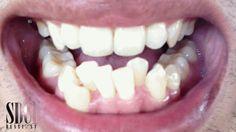Full braces time lapse - Before and After - #dentaltips Dental Care 4 Kids | Englewood, NJ | http://www.dentalcare4kidsnj.com/