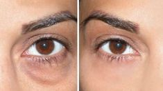 How to Cover Dark Circles + Under Eye Bags #whatcausesdarkcirclesaroundeyes