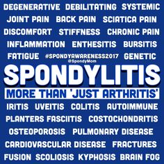 Spondylitisis so much more than 'Just Arthritis!' ~Please note, the severity of AS varies greatly from person to person, not everyone will experience the most serious complications or have spinal fusion. *An early diagnosis is key for a better quality of life. #spondyawareness2017