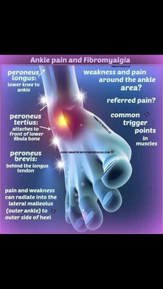 Fibromyalgia Awareness Day, Fibromyalgia Syndrome, Chronic Fatigue Syndrome, Chronic Illness, Chronic Pain, Anxiety Relief, Stress And Anxiety, Fibro Flare, Medical Laboratory Science