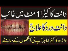 Dant Ke Keede Ka ilaj in Urdu Beauty Tips In Hindi, Beauty Tips For Face, Health And Beauty Tips, Beauty Secrets, Health Tips, Beauty Hacks, Beauty Ideas, Diy Beauty, Beauty Care